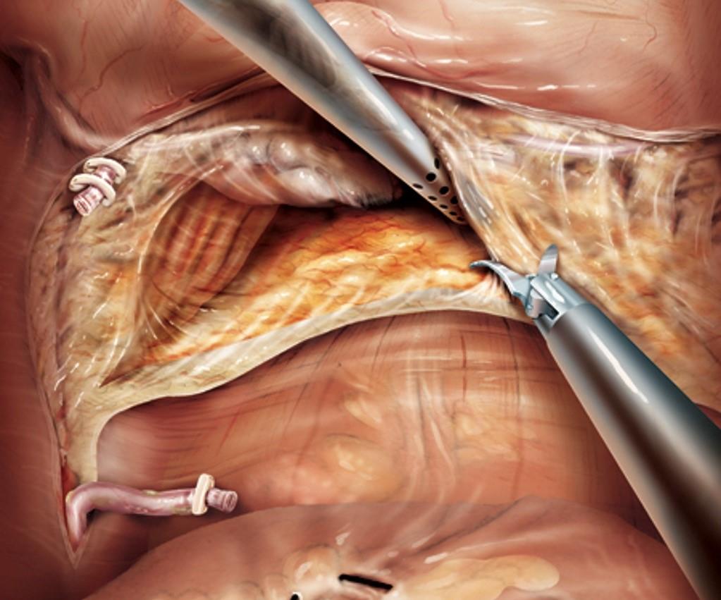 Cắt toàn bộ bàng quang bằng phương pháp nội soi: phẫu thuật lớn – đường mổ nhỏ
